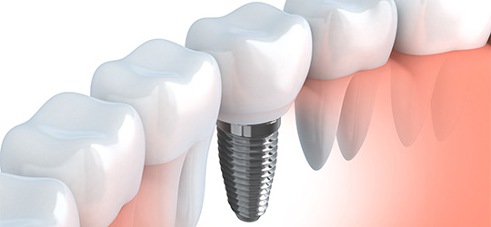 Implant3 Dentalhealingarts