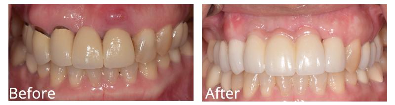 Dha Smile Gal1 Dentalhealingarts