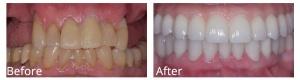 Dha Smile Gal2 Dentalhealingarts