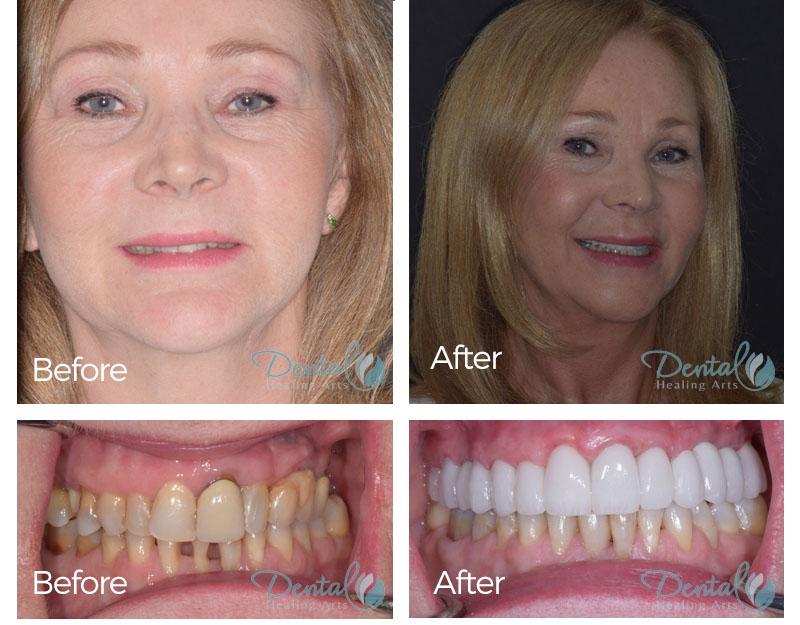 Teeth Cleaning Jupiter Fl Smile Gallery Dental Healing